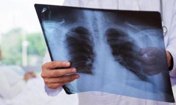 visita medica polmoni